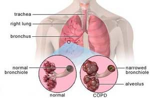 50 Items NCLEX Exam: Asthma and COPD