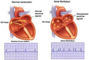 16 Items NCLEX Exam: Cardiac Arrhythmias