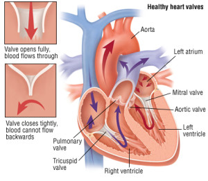 10 Items NCLEX Exam: Valvular Diseases