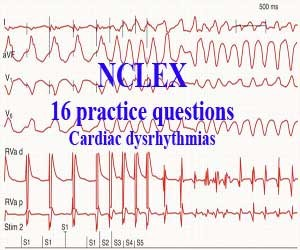 NCLEX: 16 practice questions about Cardiac dysrhythmias