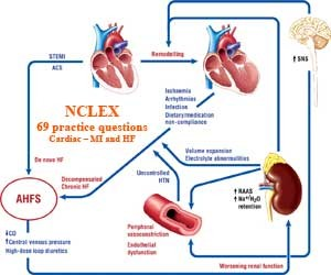 NCLEX: 69 practice questions about Cardiac – MI and HF (Part 2)